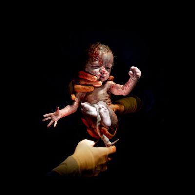 Удивителни портрети на бебета, секунди след раждането им (за хора със здрави нерви!)