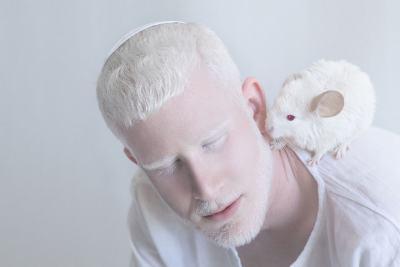 Хипнотизиращата красота на албиносите (арт фотографии)
